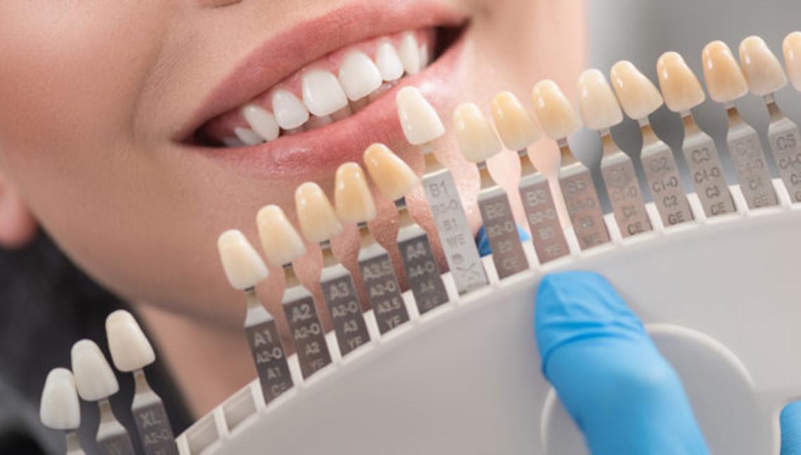 Odontoiatria e Protesi Dentaria